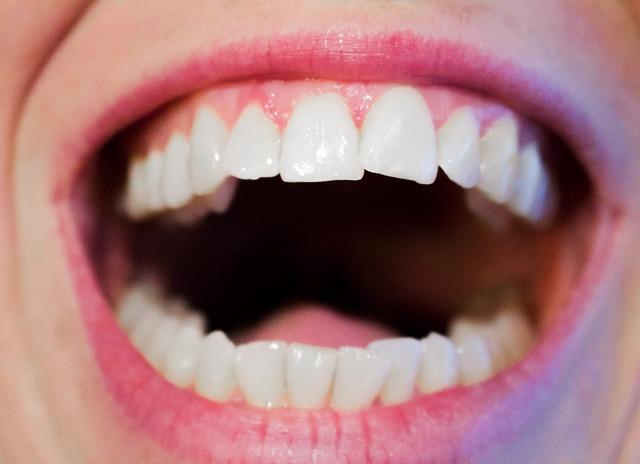 křivé zuby